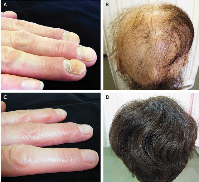Brittle nails and hair loss.jpg